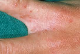 scabies 2