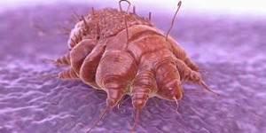 scabies 3